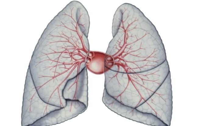 Pulmonary Artery-to-Aorta Ratio May Predict Survival in Idiopathic Pulmonary Fibrosis