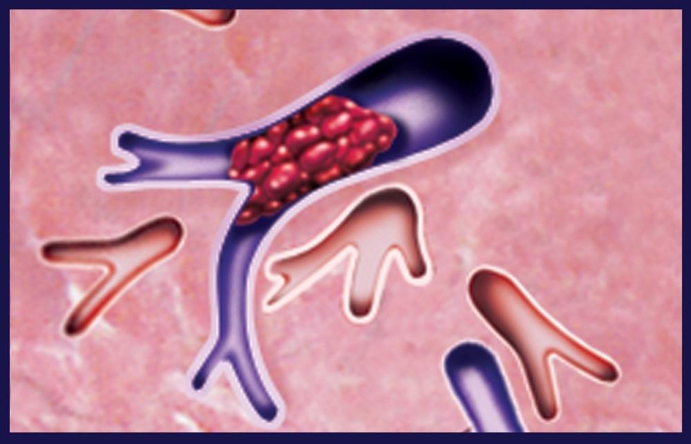 How Does Pulmonary Embolism Risk Compare After CVT vs DVT?