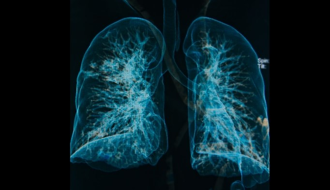 Long-Term Oxygen Therapy Beneficial in COPD with Moderate Desaturation?