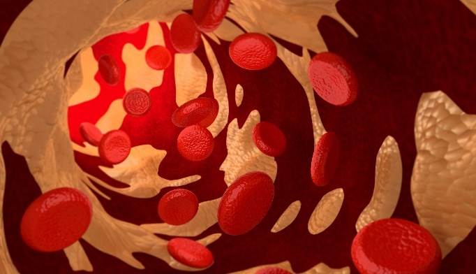 In a study, use of anticoagulants was associated with 85% fewer atherosclerotic events.