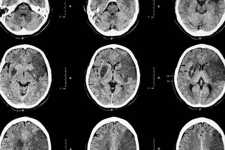Stroke Risk Upped With High Childhood BMI