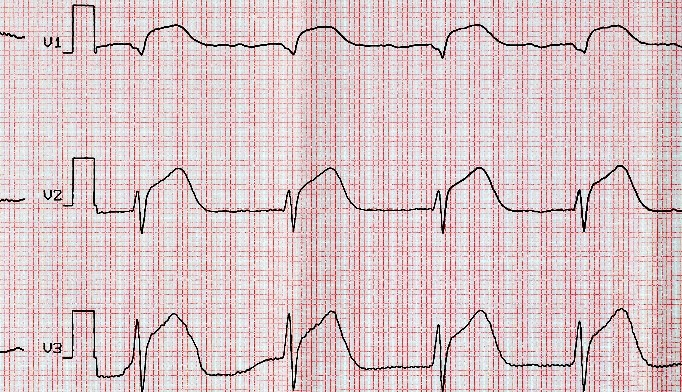 Incidence of Cardiogenic Shock in ST-Segment Elevated Myocardial Infarction