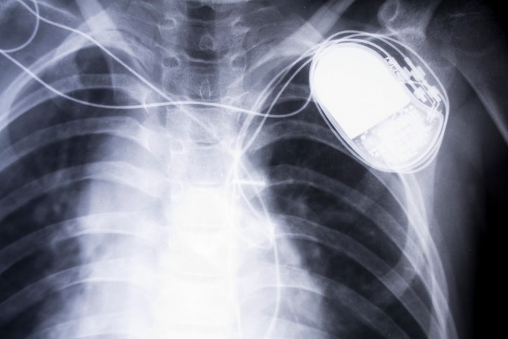 Risk of infective endocarditis twice as high in patients with a pacemaker undergoing aortic valve replacement.