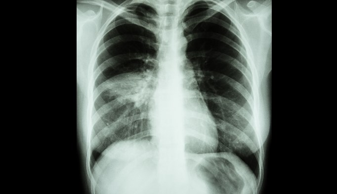 Researchers attributed cardiac mortality in community-acquired pneumonia to elevated cardiac troponin (cTnT) levels.