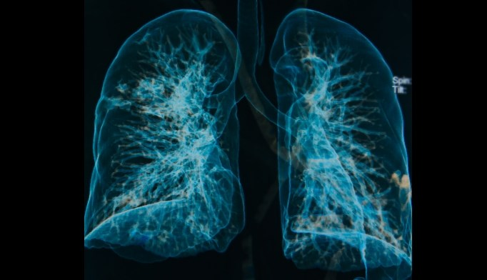 Pneumonia risk was decreased with cholinesterase inhibitors and histamine receptor-2 antagonists.