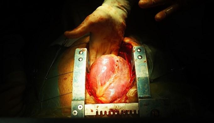 Post-Cardiac Transplantation Empagliflozin Use Associated With Metabolic Benefits in T2D