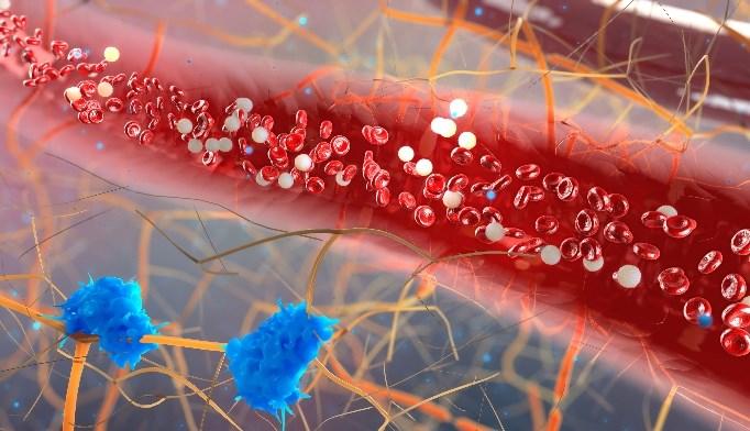 Triple Therapy in Coronary Artery Disease With GI Bleeding May Increase Mortality Risk