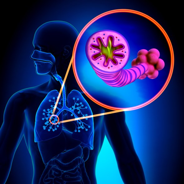 Sputum Microbiome May Predict Prognosis After COPD Hospitalization