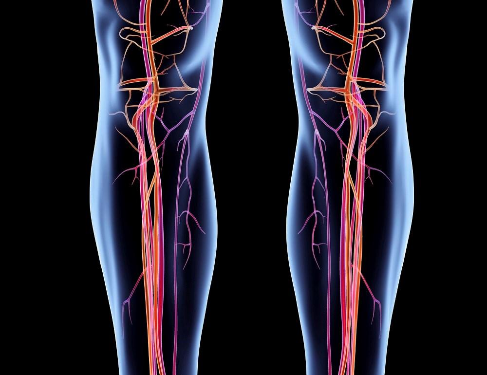 Increasing 6-Minute Walking Distance in Peripheral Artery Disease