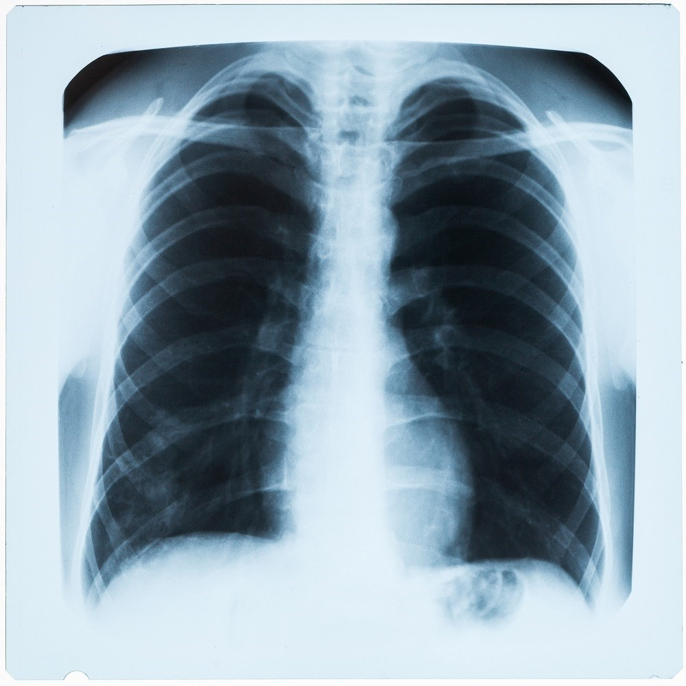 Coronary Artery Disease-Related Death Increased With Opioid Use in COPD