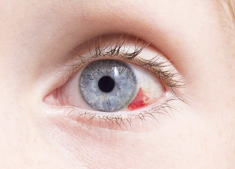 Intraocular Bleeding Risk Reduced With NOACS Compared With Warfarin