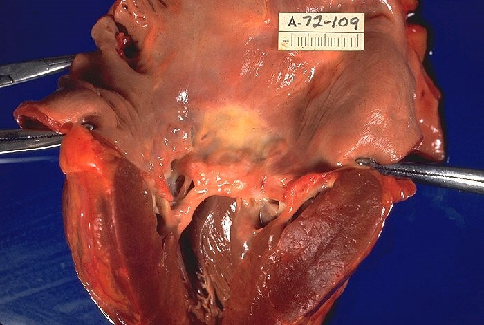 From 1990 to 2015 there was a 47.8% decrease in global age-standardized mortality due to rheumatic heart disease. <i>Photo Credit: CDC/ Dr. Edwin P. Ewing, Jr.</i>
