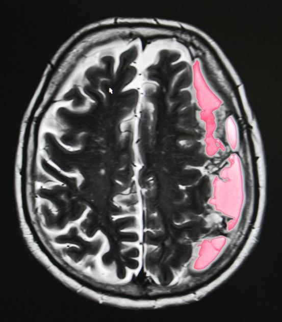 Black Atrial Fibrillation Patients Have Increased Risks for Strokes