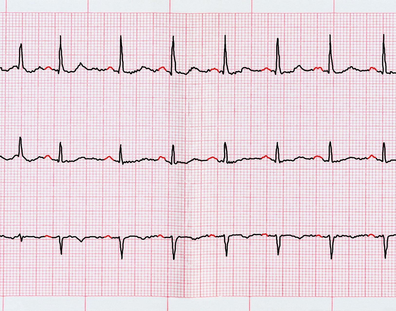 Atrial Fibrillation Mortality May Increase With Digoxin