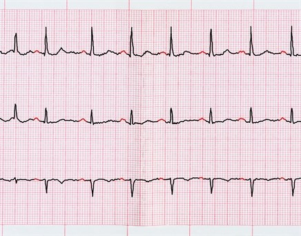 Worsening Shortness of Breath in Patient With Hypertension, Afib