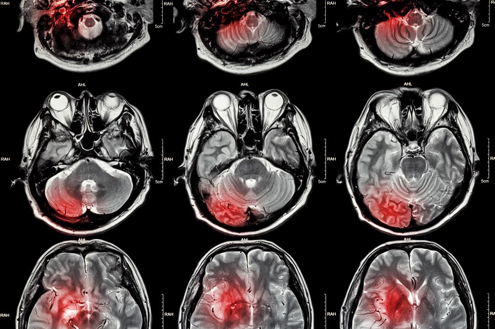 Acute Ischemic Stroke: Updated Guidelines From AHA/ASA