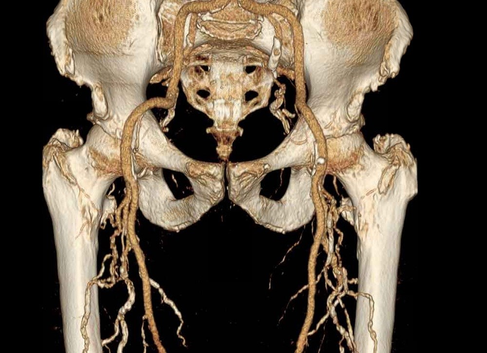 ESC: New Guidelines Recommend Multidisciplinary Approach for Peripheral Arterial Disease