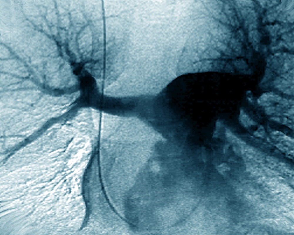 Intermediate-Risk Pulmonary Embolism Treatment With Dabigatran