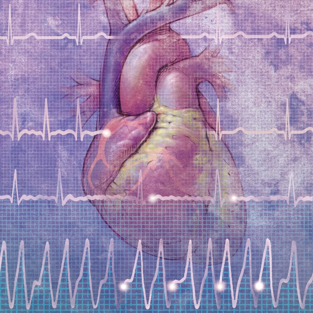 Traumatic Life Events May Increase Risk for Atrial Fibrillation in Older Women