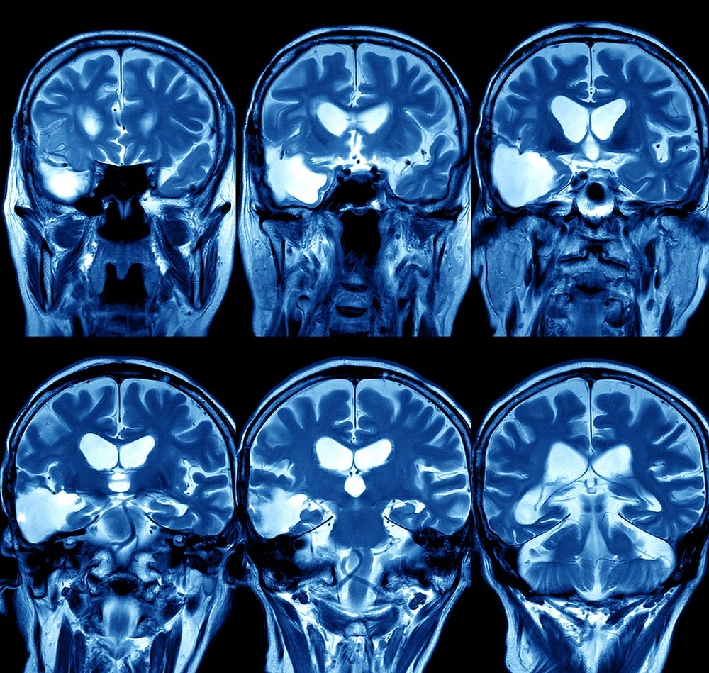 RA Pressure Associated With Cerebral White Matter Hyperintensity in Valvular Heart Disease