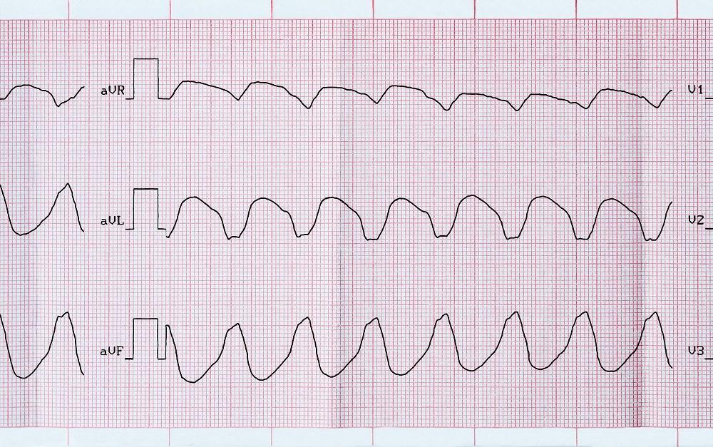 COPD May Predict Mortality in Ventricular Tachyarrhythmias, Sudden Cardiac Arrest