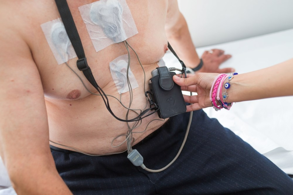 Subclinical Atrial Fibrillation Detection: Holter vs Insertable Cardiac Monitor