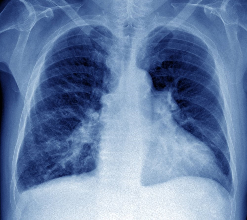 A 40-year-old woman who feels well at rest presents with shortness of breath when completing small physical tasks. <i>Photo Credit: ISM/Pr Michel Brauner</i>