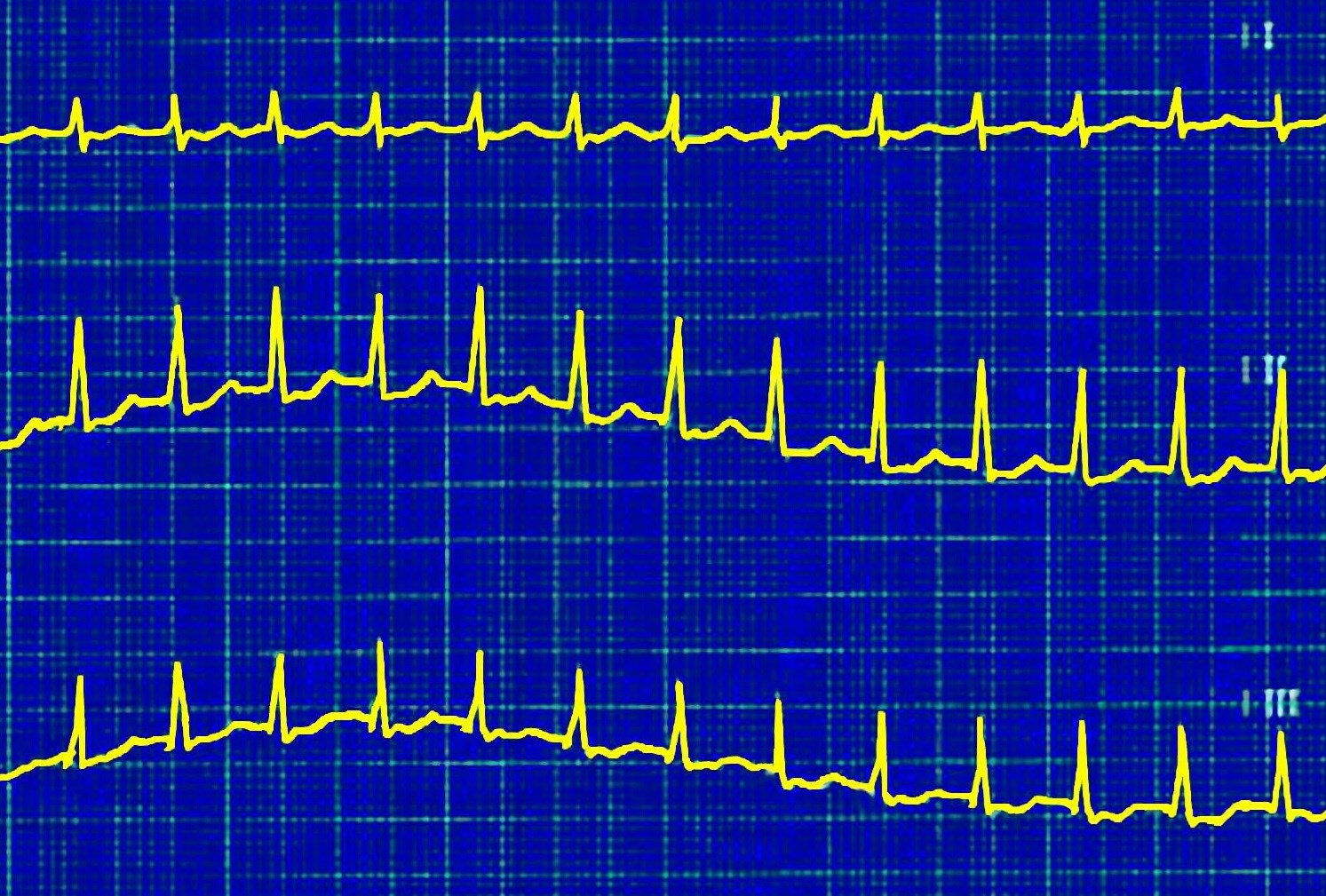 A patient has experienced heart palpitations for the past week, which became worse after mowing his lawn in the hot summer sun. <i>Photo Credit: ISM / Sovereign</i>