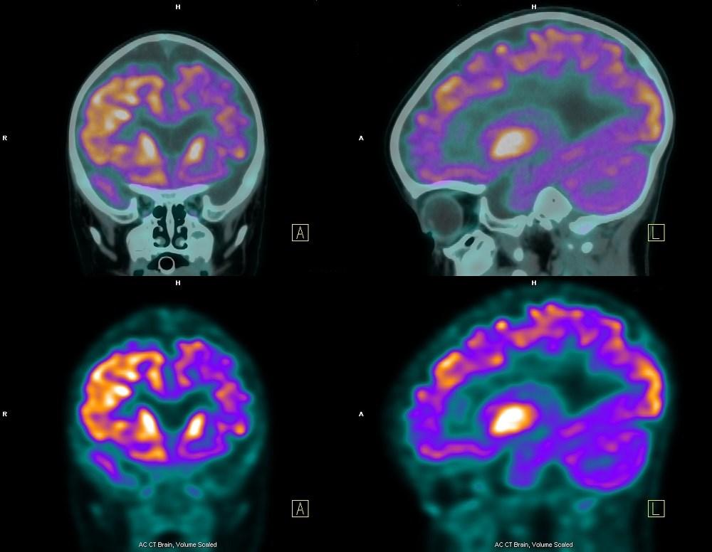 Cardiovascular Disease Risk in PLWHIV Alters Brain Glucose Metabolism