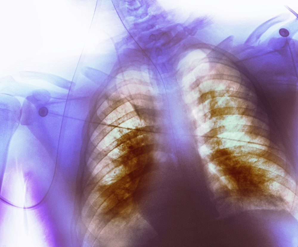 A Lethargic 67-Year-Old Woman Presents With Shortness of Breath