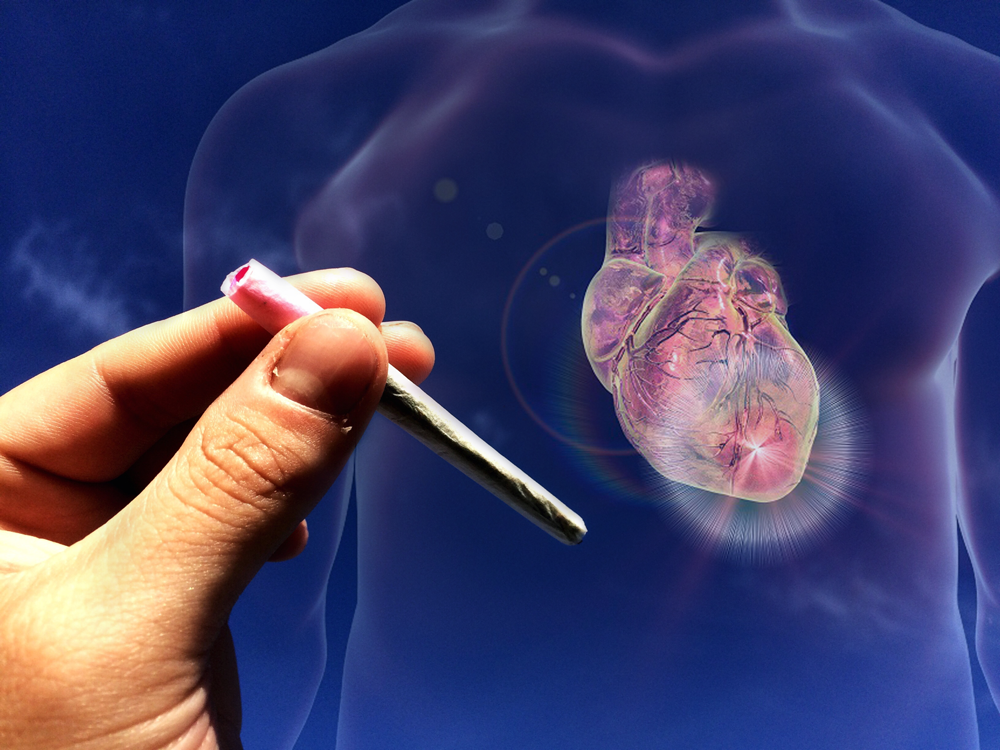 Use of cocaine and/or marijuana correlated with significantly higher cardiovascular and all-cause mortality in patients with MI.