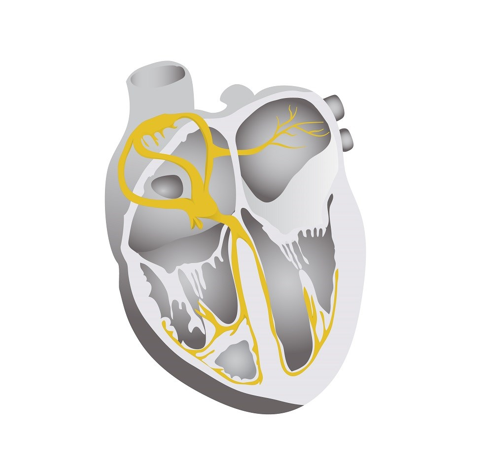 Patients with left bundle branch block had the highest combined end point of heart failure hospitalization or mortality.