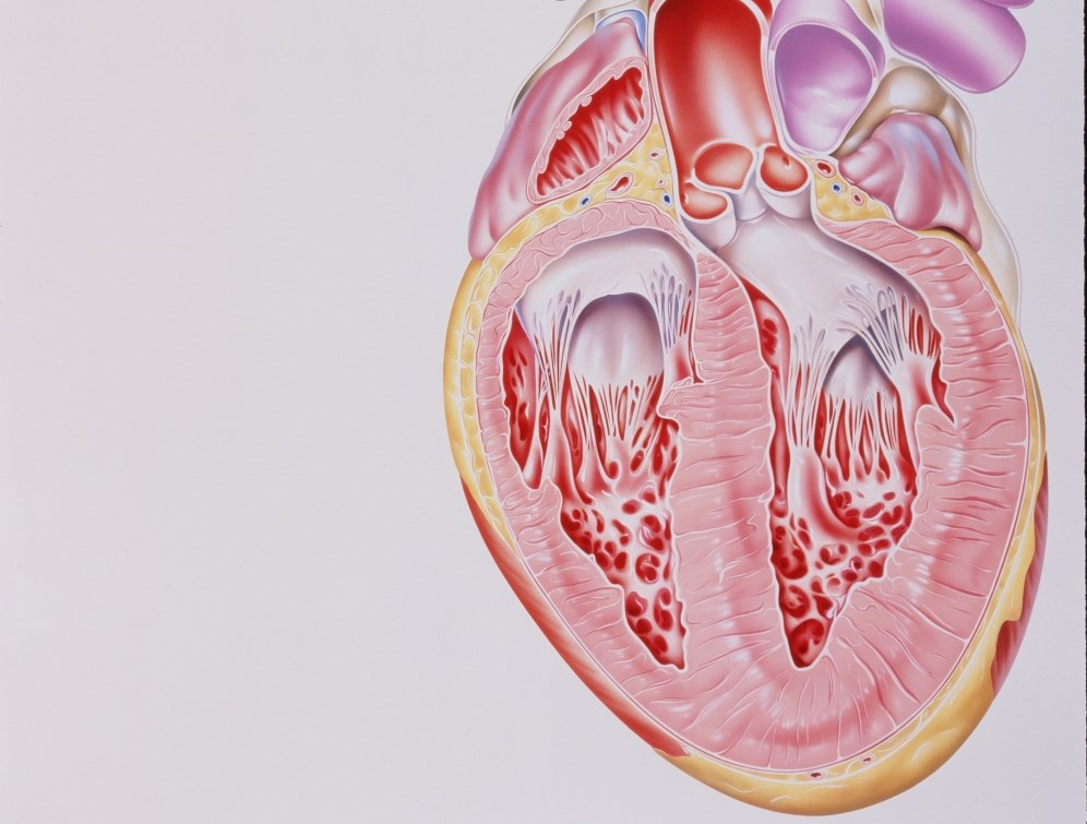 Androgen Deprivation Linked With Heart Failure