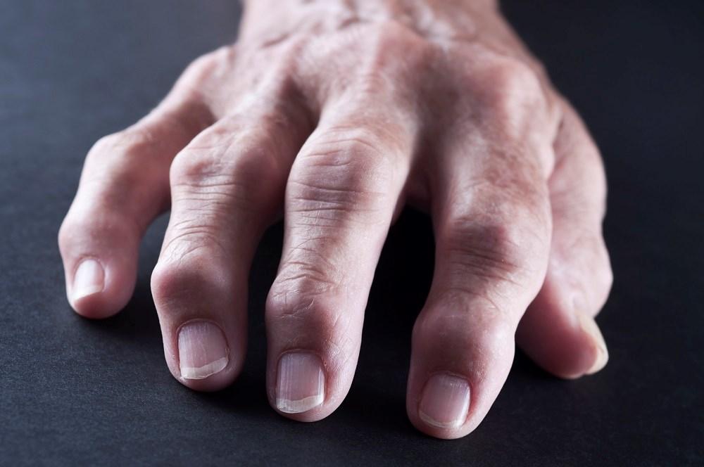 Cardiovascular Risk Reduction in Rheumatoid Arthritis With Diabetes
