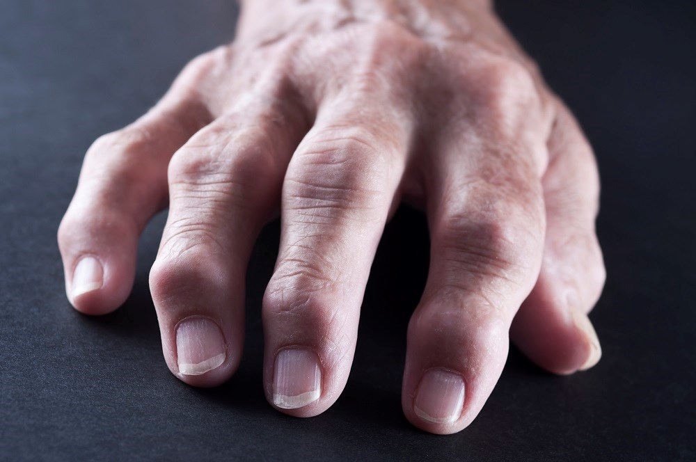 Abatacept may confer a reduction in CV risk in patients with rheumatoid arthritis, particularly if they also have diabetes.