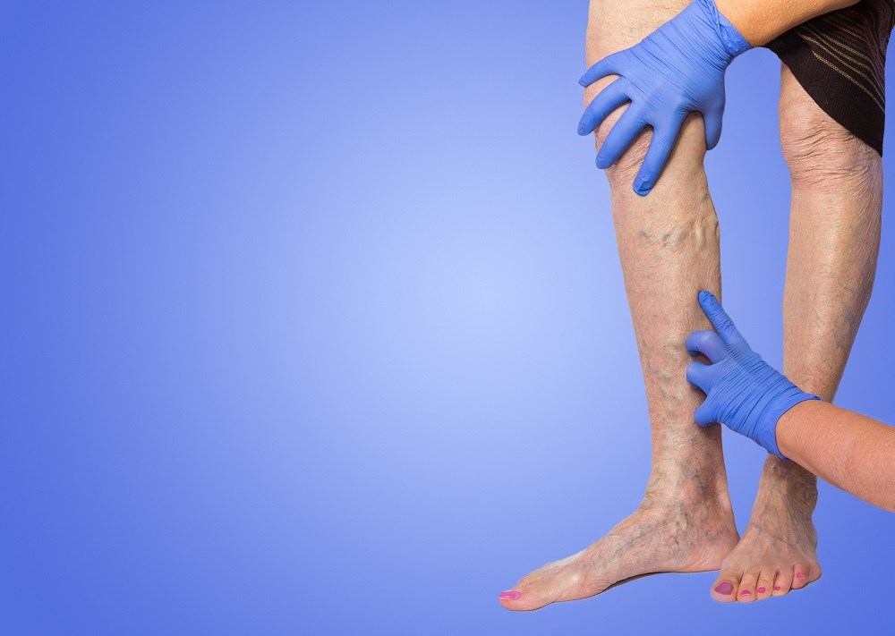 Peripheral Artery Disease, DVT Risk May Increase With Varicose Veins