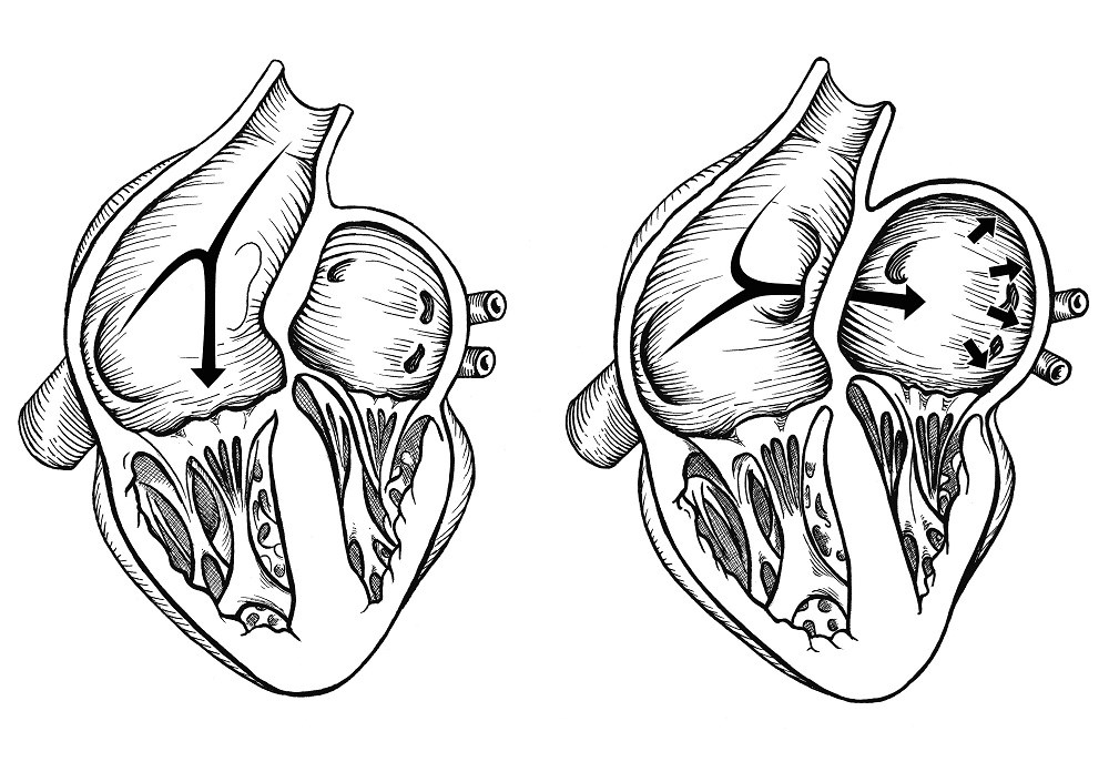Patent Foramen Ovale Characteristics May Predict Benefits of PFO Closure