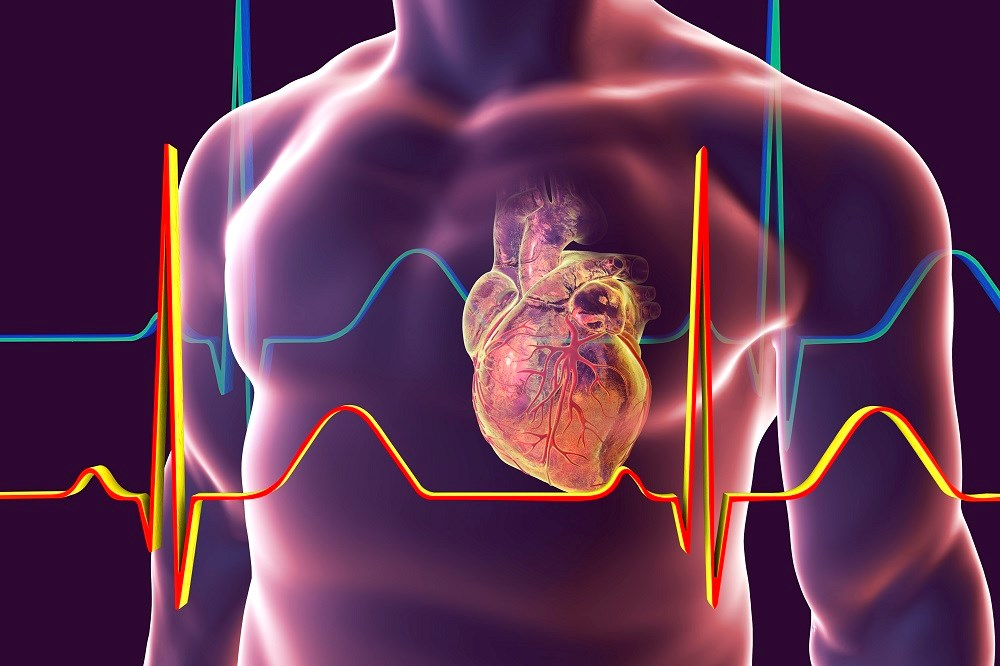 Coronary Heart Disease Mortality Often Attributed to Sudden Arrhythmic Death