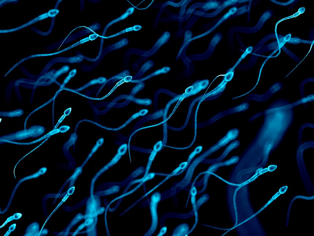 Low Sperm Count Associated With Worse Metabolic, Cardiovascular, and Bone Health