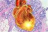 AHA Examines CVD and Breast Cancer Relationship