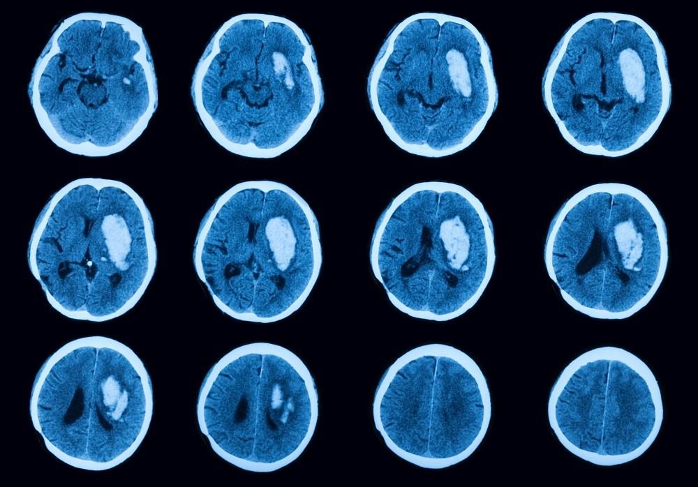 Anxiety May Increase Stroke, Intracranial Hemorrhage in Atrial Fibrillation