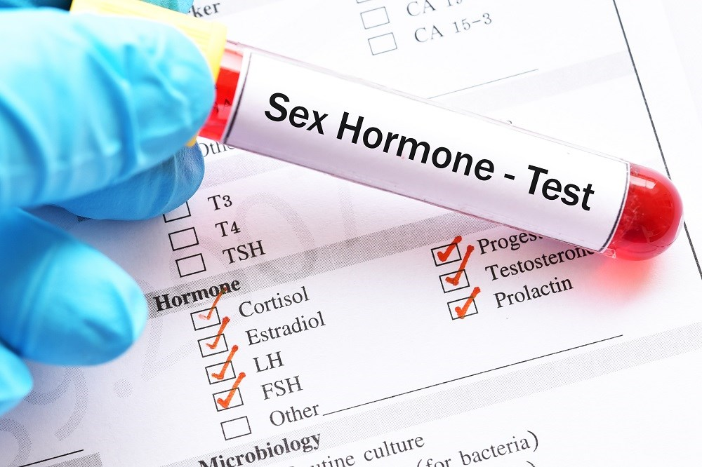 PAH Risk, Mortality Increased by Disturbances in Male Sex Hormones