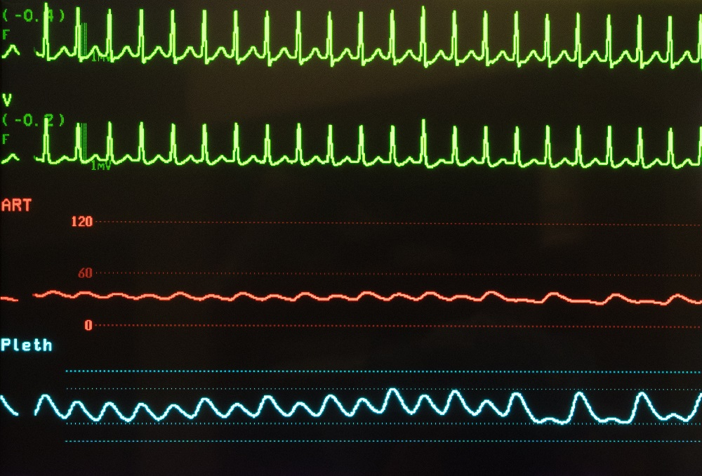 Tachycardia May Indicate Higher Mortality Risk in Cancer Patients - Renal  and Urology News d36e3e18b1c