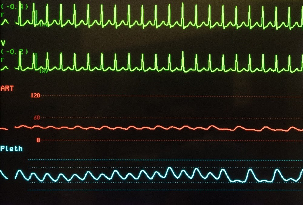 Tachycardia significantly predicts mortality in lung cancer, leukemia, lymphoma, multiple myeloma