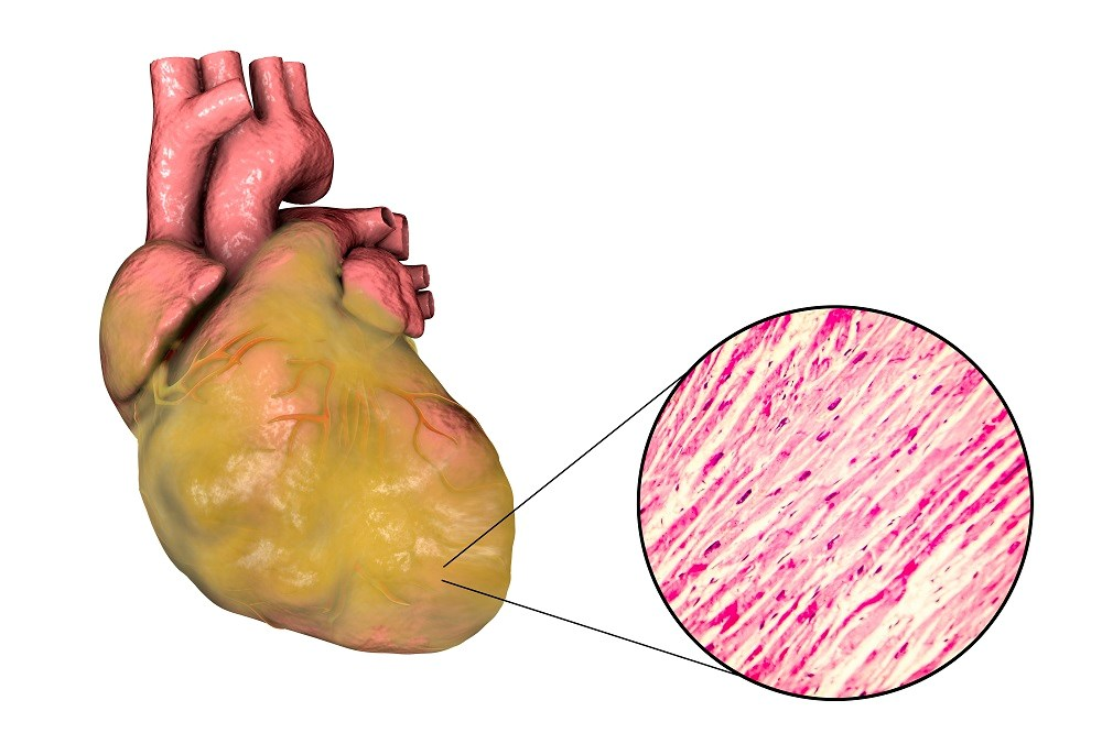 Factors associated with an increased risk for new-onset heart failure and all-cause mortality included LV hypertrophy and left atrial enlargement. <i>Photo Credit: Science Source</i>