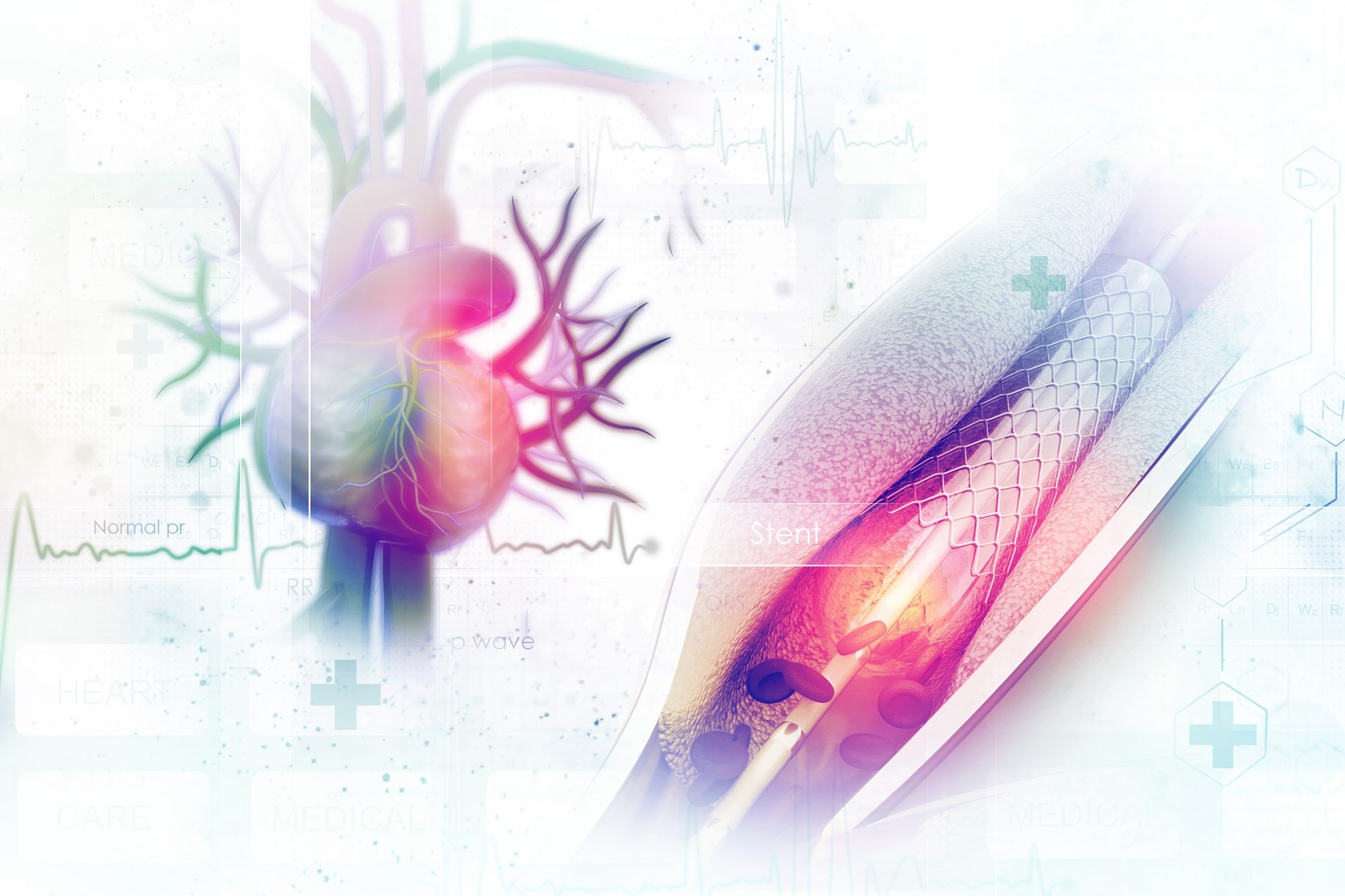 The 30-day and 5-year stroke rates were compared between CABG and PCI.