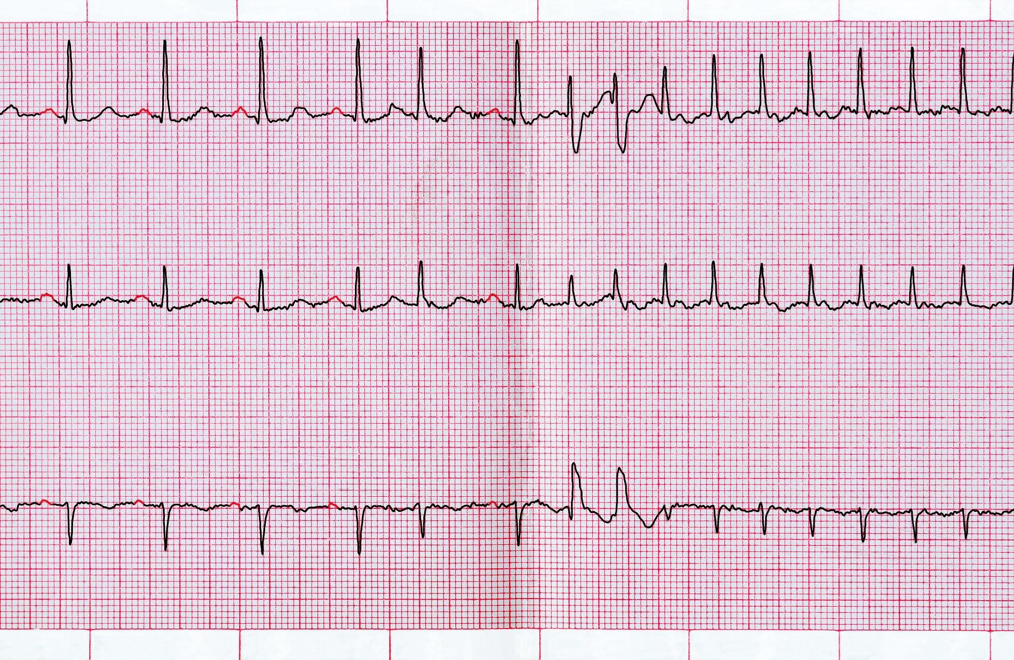 Troponin-T, NT-proBNP May Predict Mortality Risk in Atrial Fibrillation