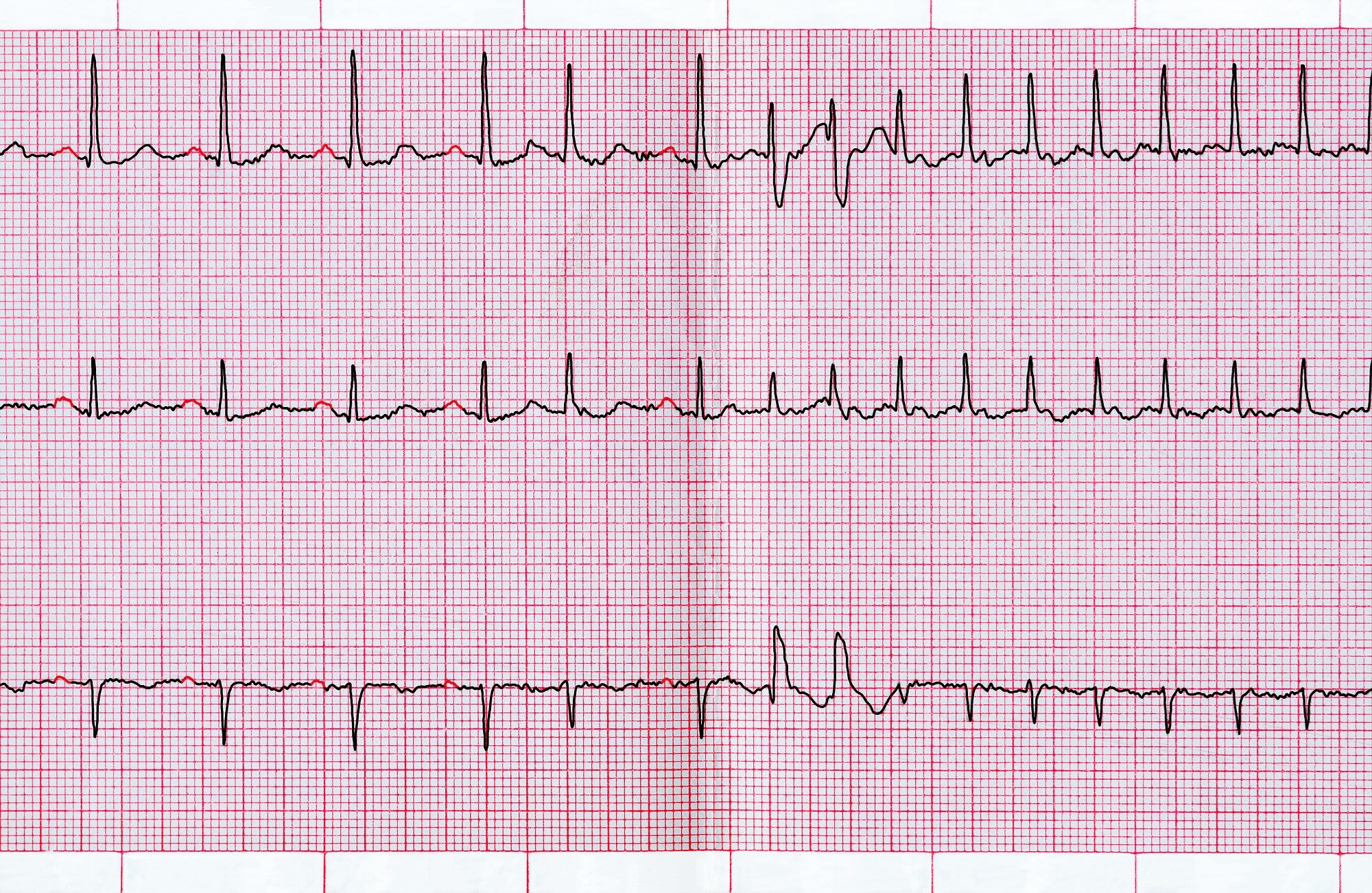 The troponin-T biomarker demonstrated the strongest association with sudden death in patients with atrial fibrillation.