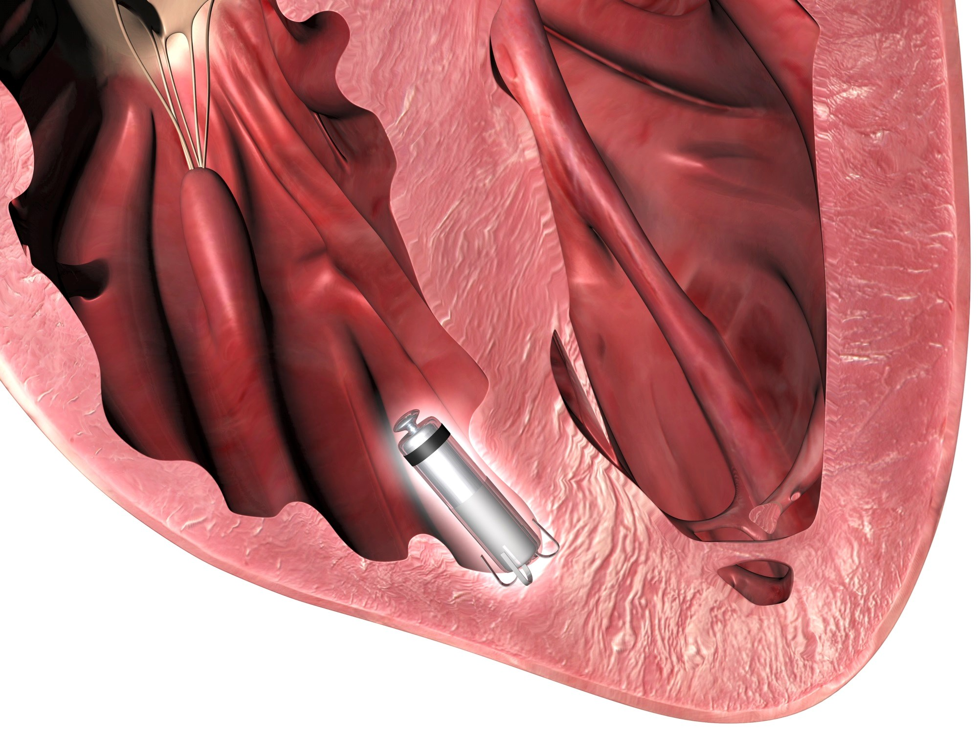 Short-term complications from a cardiac pacemaker included dislodgments, vascular-related events, and pericardial effusion both with and without tamponade.