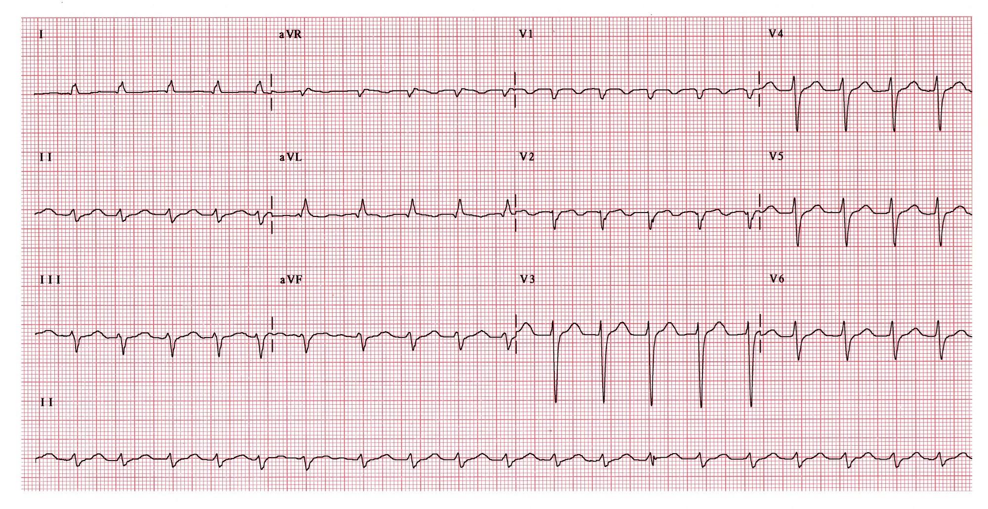 Hypothyroidism Predicts Atrial Tachyarrhythmia After AF Catheter Ablation